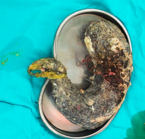 Massive Hairball Found In Malnourished Girl's Stomach