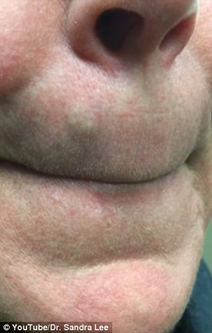 Watch: The Shocking Discovery Embedded In This Woman's Upper Lip Will Make You Cringe