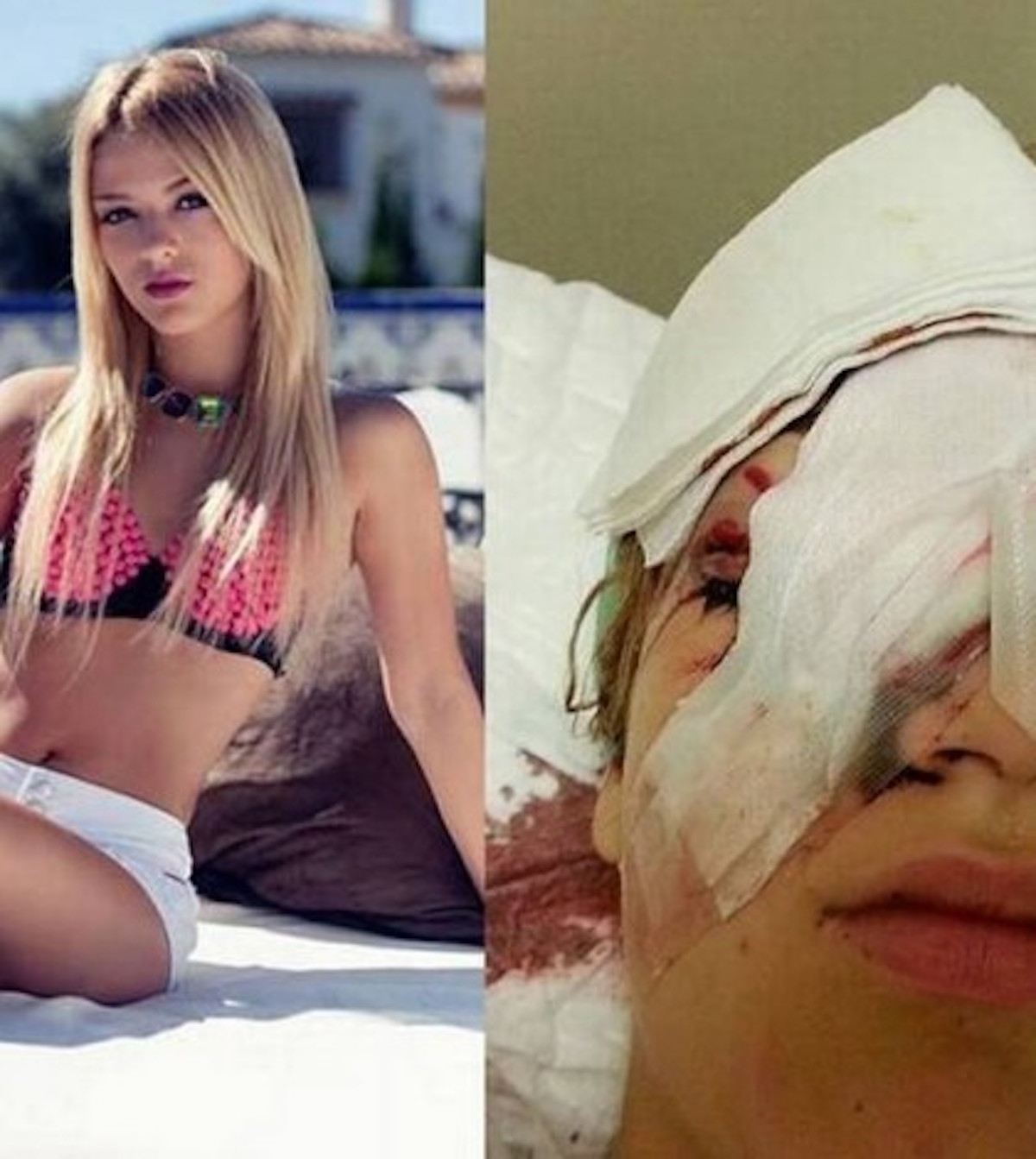 "[VIDEO] Beautiful Danish Teen Brutally Attacked/Blinded By African ""Immigrants"""
