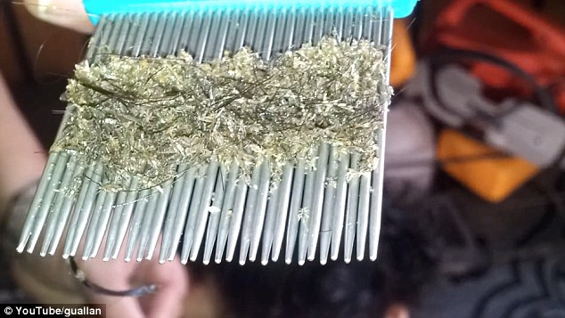 Is This the Worst Case of Head Lice Ever..Disgusting [VIDEO]