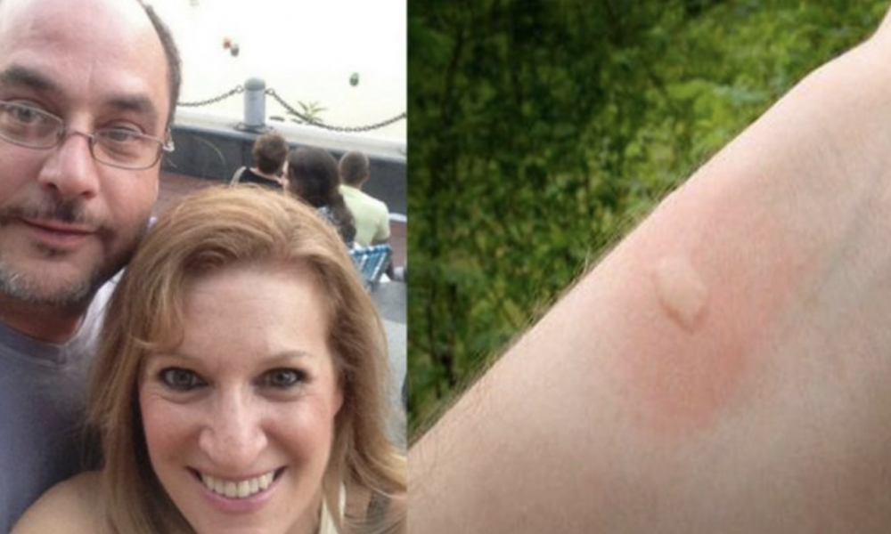 They Thought It Was A Normal Insect Bite, But It Killed Her Husband. This Is Her Warning…