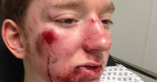 Woman Refuses To Help Teen After He Is Hit By Car For This Insane Reason [PHOTO]